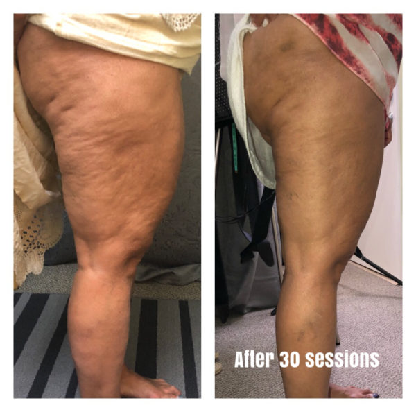 lipomelt body slimming reviews pierderea în greutate urdu semnificație